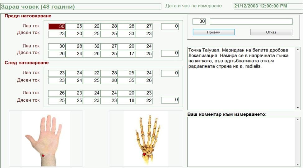 Екран измерване